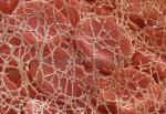 Magnified veiw of a blood clot